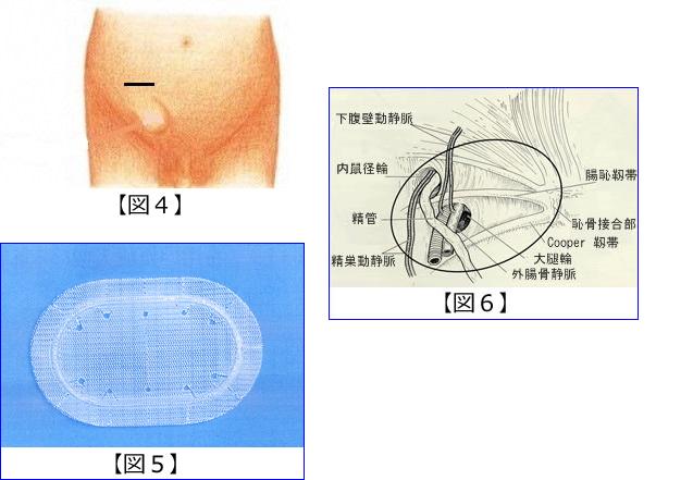 【腹腔鏡下鼠径ヘルニア修復術】 腹腔鏡を用いた鼠径ヘルニアの手術には、腹腔内から腹膜を切開してヘ